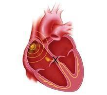 Блокади серця