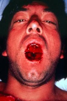 Геморагічна лихоманка з нирковим синдромом (ГЛПС)