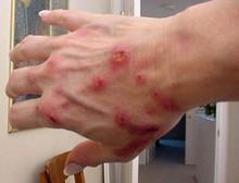 Кліщовий бореліоз, хвороба Лайма