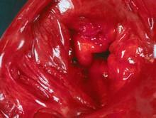 Пролапс мітрального клапана
