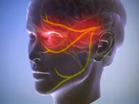 Черепно-лицьова біль судинного генезу