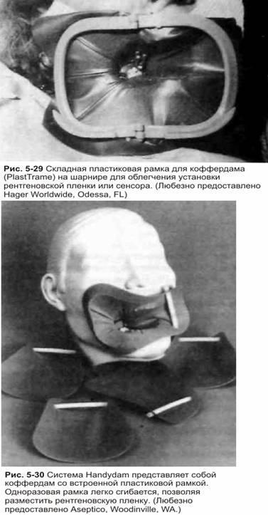 Підготовка доступа: ізоляція зуба