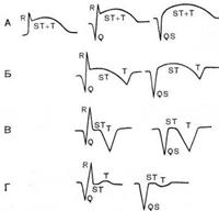 Електрокардіографічні стадії інфаркту міокарда