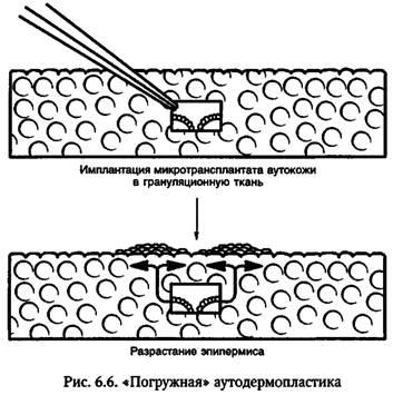 Економні методи шкірної пластики