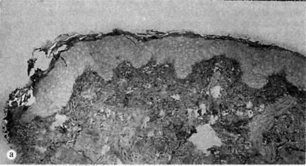 Властивості шкіри, відновленої пересадкою аутологічних кератиноцитів