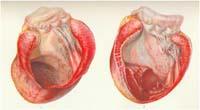 Справжня аневризма лівого шлуночка