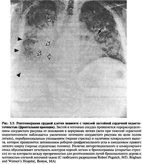 Легеневі прояви захворювань серця