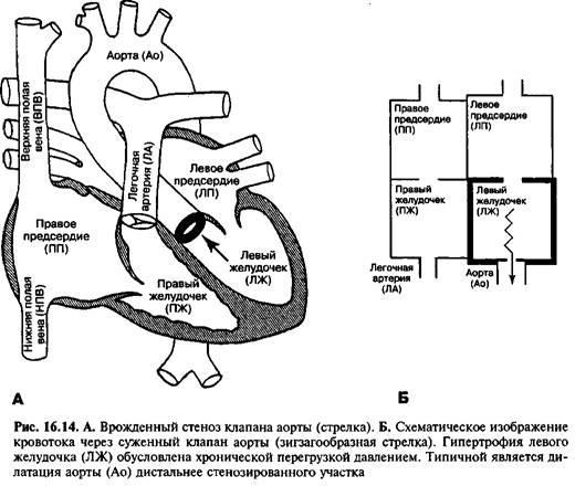 Природжений стеноз гирла аорти