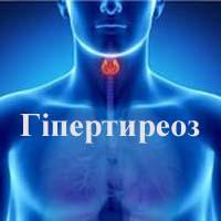 Гіпертиреоз