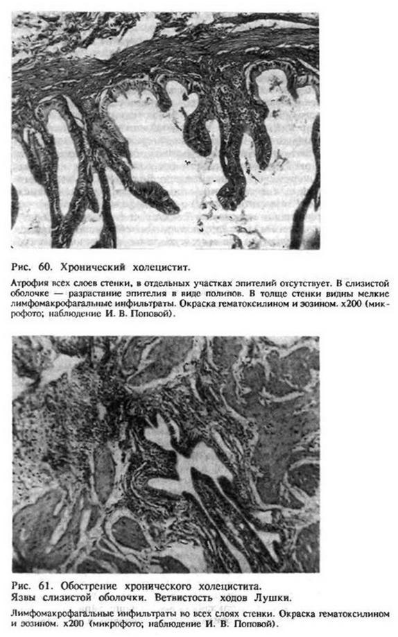 Глава 21. Безкам'яний холецистит