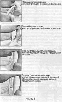 Глава 15 Про болю хронічного запалення, пов'язаної з грижею диска