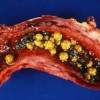 Жовчнокам'яна хвороба