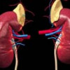 Лікування гострої недостатності кори надниркових залоз