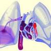 Клінічні прояви тромбозів і тромбоемболії