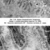 Дермо-епідермального з'єднання