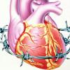 Лікування нестабільної стенокардії