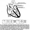 Катетеризація серця