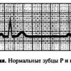 Діагностика аритмій серця