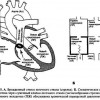 Стеноз легеневого стовбура
