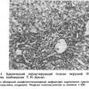 8.2. Хронічний персистуючий гепатит