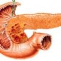 Хронічний гепатит