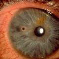 Сторонні тіла і травми ока