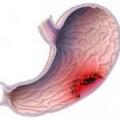 Рак шлунка