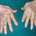Ревматоїдний артрит