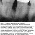 Обстеження зубів