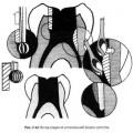Формування доступу в молярах нижньої щелепи