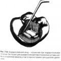 Використання ендодонтичного зонда для визначення розташування гирла каналів