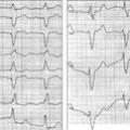 Діагностика інфаркту міокарда при блокадах ніжок пучка Гіса
