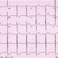 Інфарктоподобние зміни на ЕКГ при інших захворюваннях і станах