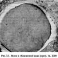Визначення глибини і площі опіків