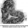 Знеболювання при опіках