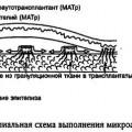 Відновлення шкірного покриву методом мікроаутодермопластікі