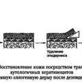 Комбіновані методи відновлення шкірного покриву