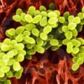Лікування стафілококу