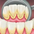 Зубний наліт і його наслідки