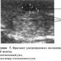 Що таке вузол щитовидної залози