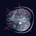 Розсіяний склероз