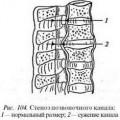 Стеноз хребетного каналу