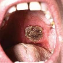 Синдром Вегенера