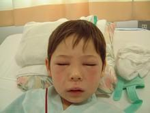 Анафілактичний шок (анафілаксія)