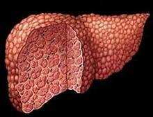 Ускладнення цирозу печінки