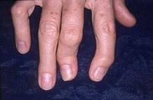 Псоріатичний артрит