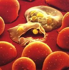 Тропічні та небезпечні інфекції