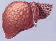 Цироз печінки