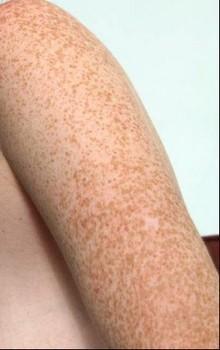 Веснянки, родимки і порушення пігментації шкіри