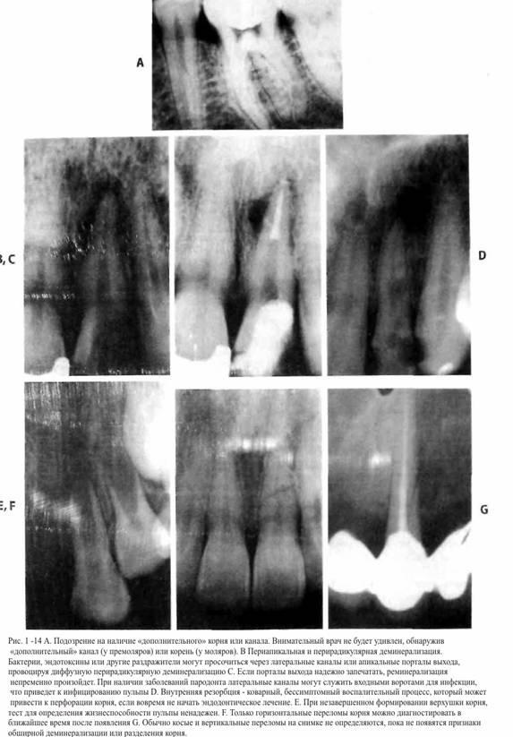 Розшифровка рентгенограм